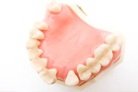 歯を失ってしまった場合の治療